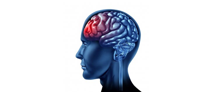 Human hormone study for brain injuries