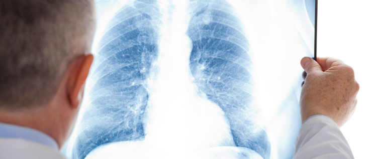 Time is the Greatest Risk Factor for Mesothelioma Claims